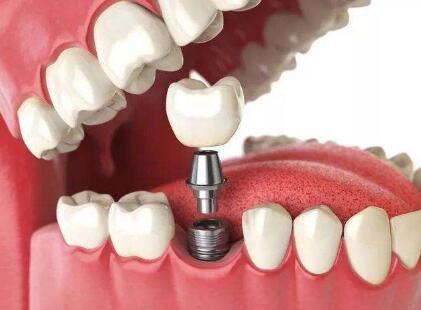 种植牙的伤口大概什么能愈合