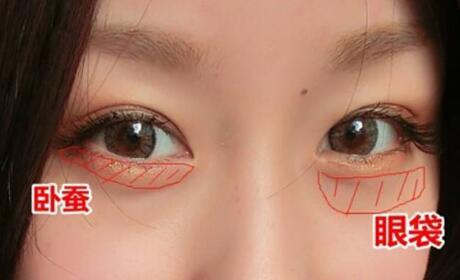 秒懂内吸法除眼袋手术方式