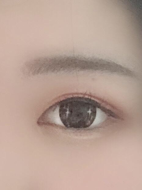 全切双眼皮手术的优势有几种