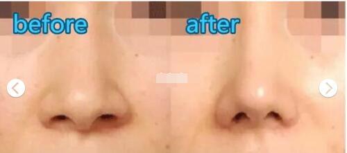 鼻翼缩小有哪些适应症