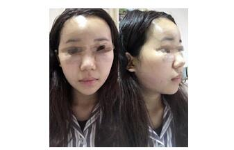 郑州米兰做下颌缘吸脂、额头填充真实案例 程书信技术很好