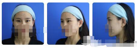 广州广美与广州美恩做双眼皮哪个好?案例见证实力