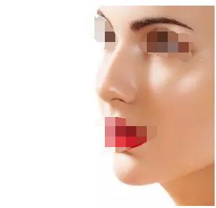 选择什么样的隆鼻手术方式