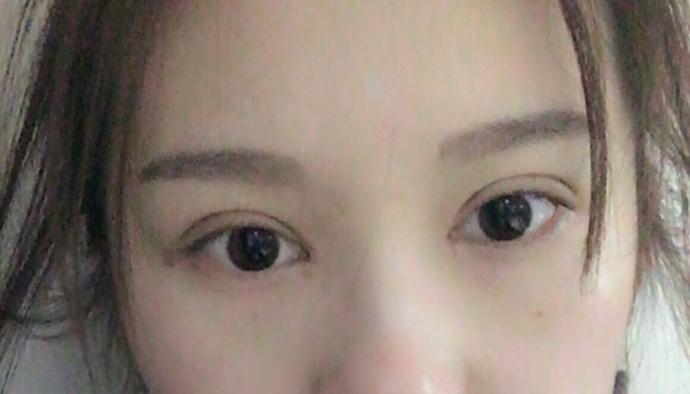 北京八大处布仁医生做的全切双眼皮+内眼角 一共花了14800元