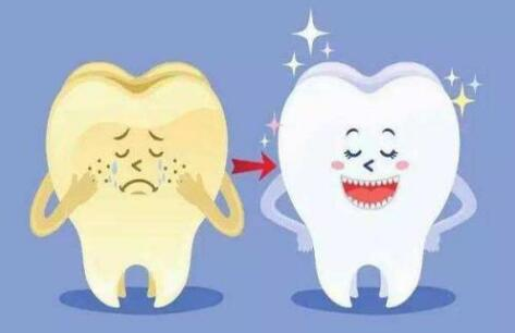 冷光牙齿美白术前需要知道的这些事情