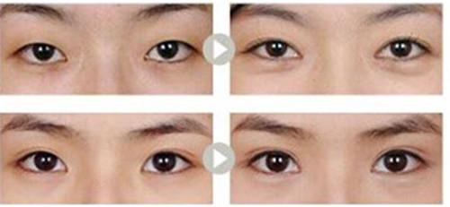 假体鼻整形手术效果维持多久呢