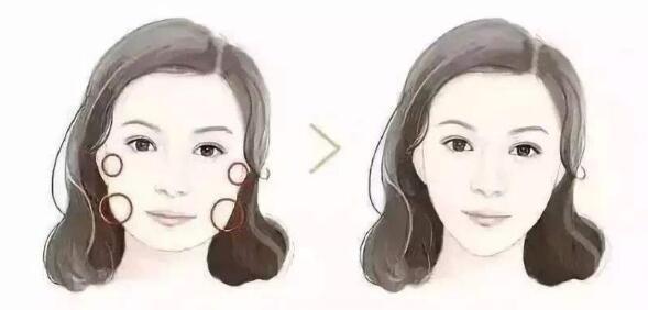 面部吸脂术后消肿比较快的方法