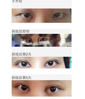 上海九院做全切双眼皮手术案例