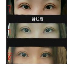 佛山苏李秀英医院做全切双眼皮+内眼角案例