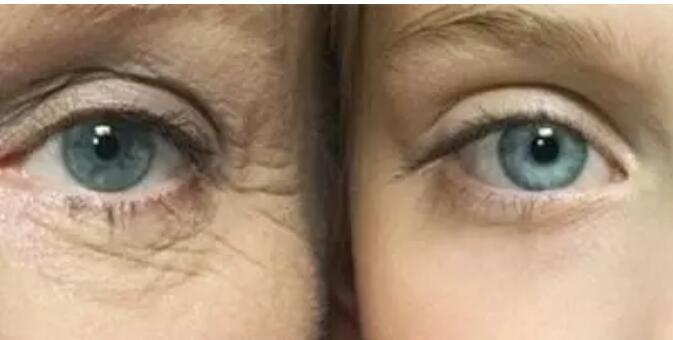 确认过眼神选择玻尿酸除皱方法