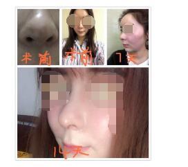 北京柏丽李劲良医生做的鼻综合 我消费了70000