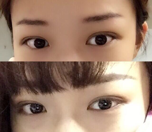 深圳军科刘月更医生做的双眼皮