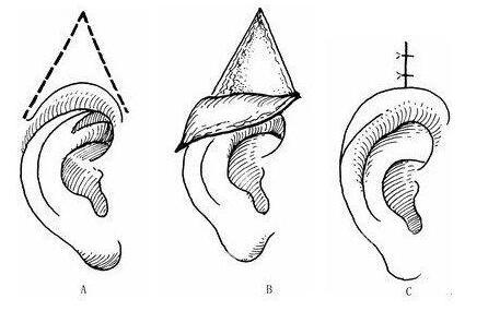 隐耳矫正术是不是要分时期进行的