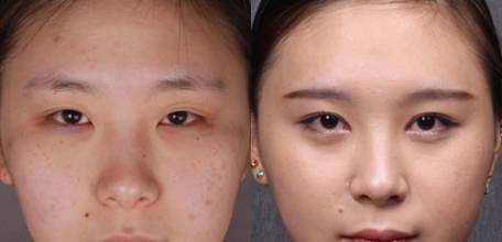 硅胶隆鼻最为长见那些效果