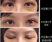 在广州华侨医院找卢金强医生做的三点微创双眼皮+去脂