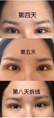 上海九院浦东分院黄如林医生做的全切双眼皮