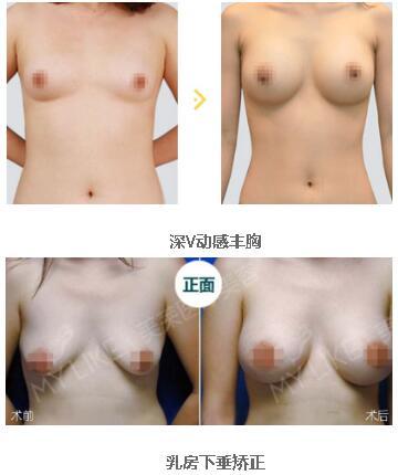 【整形大咖】郑州美莱整形刘伟院长的乳房整形