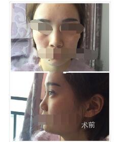成都忠爱做鼻综合、自体脂肪填充案例 彭忠医生技术高明