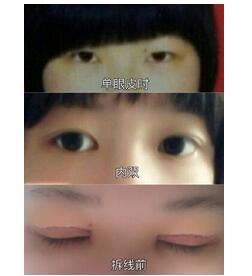 沈阳202医院做全切双眼皮+外眼角真实案例 于医生技术杠杠的