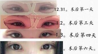 北京八大处国贸门诊王淑杰医生做的全切双眼皮+内眼角 术后图来了