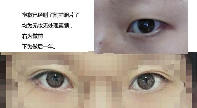 湖南中南大学湘雅医院整形科谭骛远医生做的全切双眼皮术后的样子