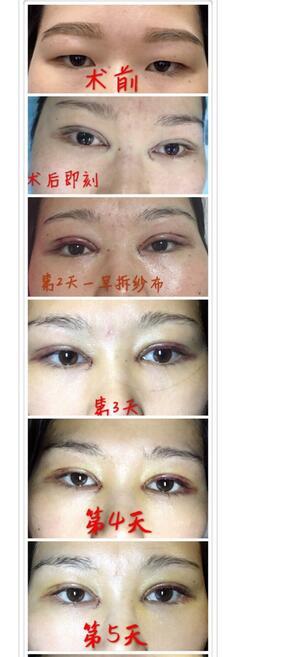 深圳广和做全切双眼皮+内眼角+提肌案例 于国东医生技术杠杠的