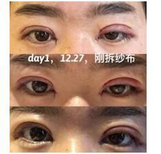 上海九院做全切双眼皮+内眼角真实案例 谢芸医生技术精悍