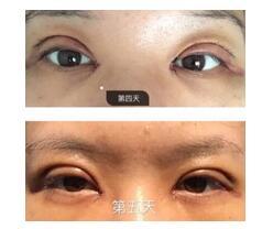 广西南宁市美丽焦点做全切双眼皮+内眼角真实案例