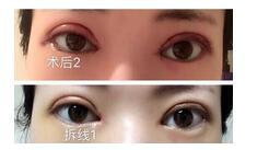武汉协和医院做全切双眼皮+内眼角案例 杨教授技术杠杠的