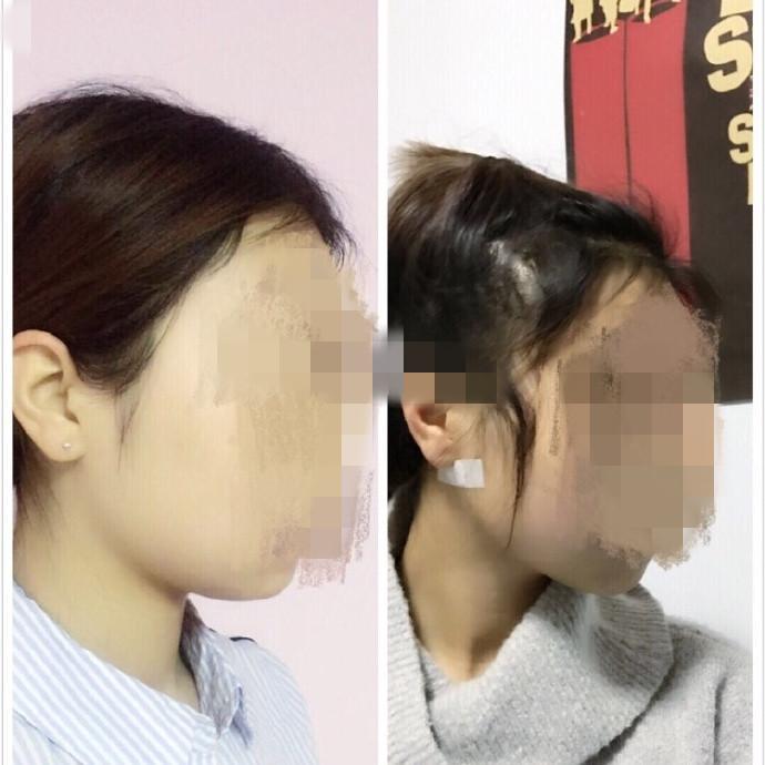 北京黄寺整形外科医院邵祯医生做的面颊吸脂