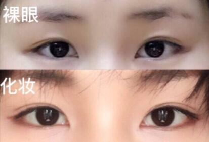 上海九院周一雄医生做的全切双眼皮 仅仅花了4200元