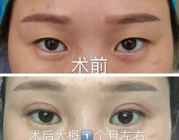 上海九院眼科李茅医生做的全切双眼皮 我只花4300就OK了