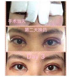 北京八大处做全切双眼皮+内眼角真实案例 靳小雷技术杠杠的
