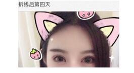 上海九院做全切双眼皮真实案例 朱海男技术不错