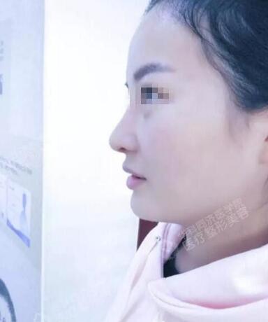 【整形名医】武汉同济整形邓裴的鼻整形