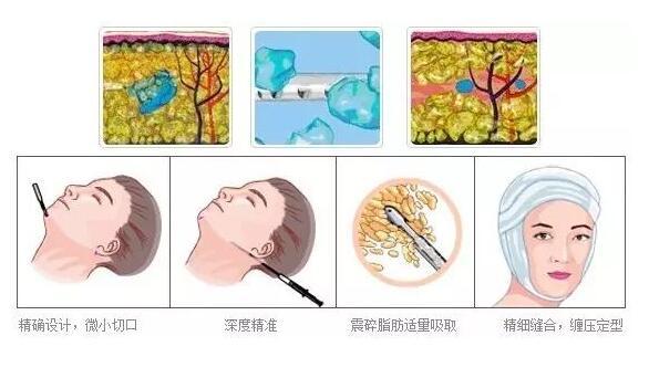 【须知】面部吸脂对医生的技术要求是非常高的