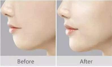 隆下巴的几种手术种类