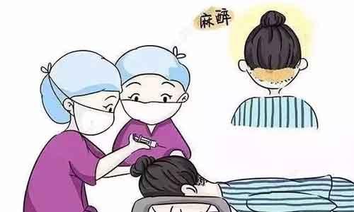 种植头发过程分为几个步骤?