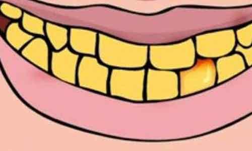 牙齿美白过程是怎样的?