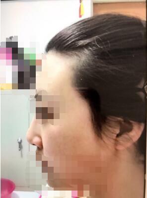 大连新华美天徐航医生做的鼻综合 比以前好看了 开心哦