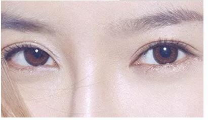开眼角术后有疤痕增生怎么办呢
