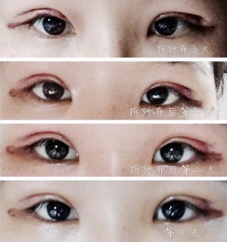 北京八大处尹宏宇医生做的全切双眼皮 手术价格6500元钱左右