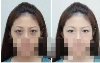如何避免激光祛黑眼圈副作用?