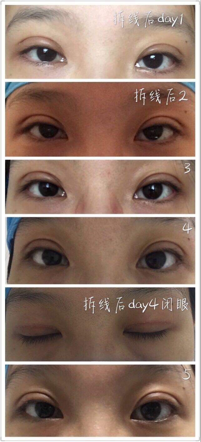 北京八大处宋维铭医生做的全切双眼皮 上图给大家看看了