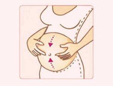 激光去妊娠纹风险和并发症