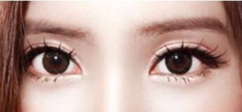 眼睛小就不可以做双眼皮手术了吗
