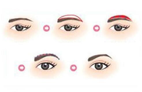 眉毛种植的价位是受哪些因素影响的