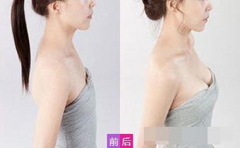 关于假体隆胸的五大误区,隆胸前必看!