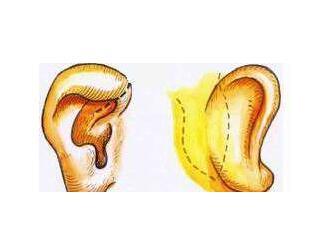 杯状耳矫正手术的原则有这四点,值得大家注意