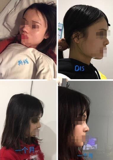 北京丹熙罗汇东医生做的膨体鼻综合+耳软骨鼻尖案例分享
